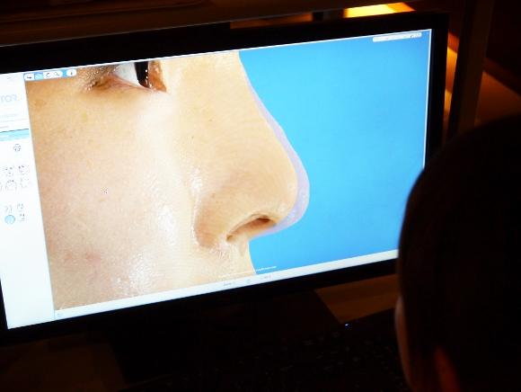 整形したらどんな顔? 3D映像で整形後の顔をシュミレートできる超ハイテクマシーン登場