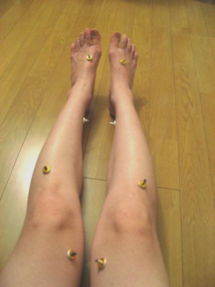 足のむくみ、不妊、生理痛、冷えが気になる女性必見! 自分でできるお灸で体を温めましょ!