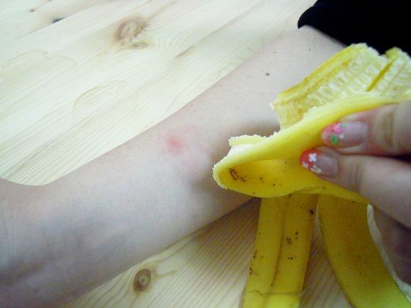 【検証】虫刺されのかゆみにはバナナの皮が効くらしい/なぜか蚊に刺されたので本当に効くのかやってみた