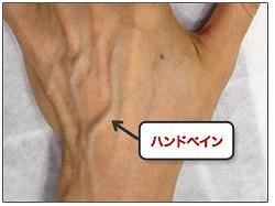 【知ってた?】「手の血管を消したい!」と願う女性が増加しているらしい…「ハンドべイン手術」で手が若返るんだって!
