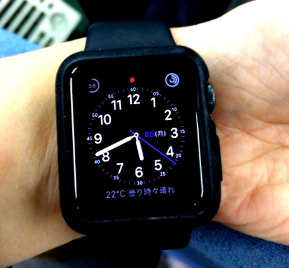 これで誰でもApple Watchが使える? 手首にタトゥーをいれている人向けの「Apple Watch Hand」が思い切ってる!