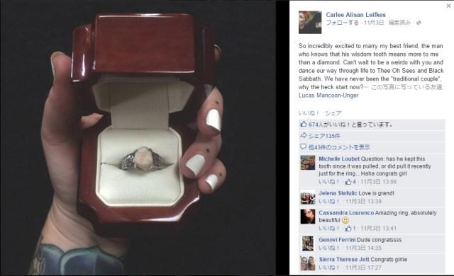 フツーの婚約指輪じゃイヤ→ そうだ、歯で作ろう! 親知らずを台座にはめて指輪を作った前代未聞のカップルが話題に