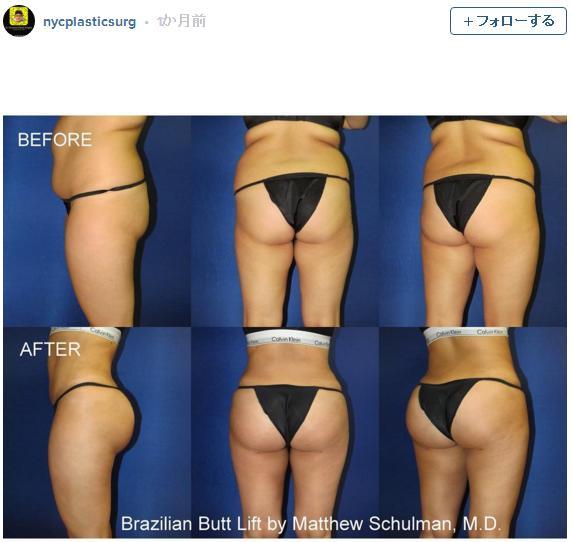 脂肪吸引と美容整形でお尻のかたちがここまで変わる!? ちょっぴり心が揺らぐ「ヒップアップ」ビフォーアフター写真