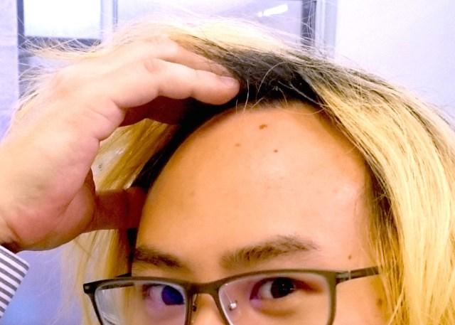 【デリケートな話】薄毛をいちばん気にしてるのは◯◯県の男子 / 逆に自信があるのはあの地方の男子なんだって