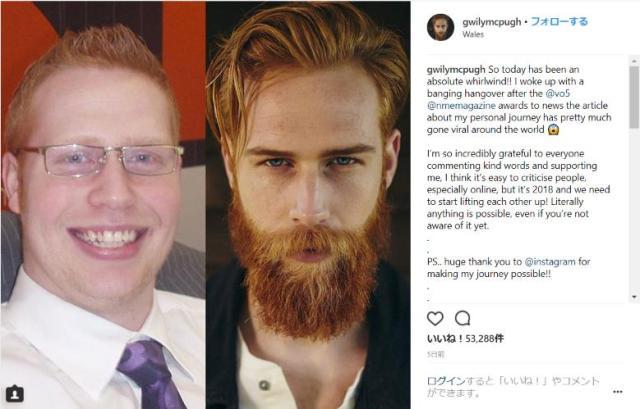 ひげを伸ばしたら人生が変わった! ぽっちゃり男子からイケメンモデルになった男性のミラクルストーリー