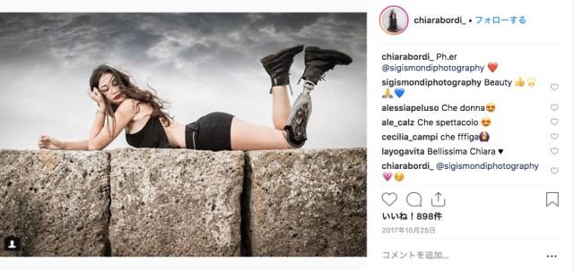 13歳のときに交通事故で左足を失った女性がミスイタリアのファイナリストに! 美のステレオタイプを打ち破るべく参加しました