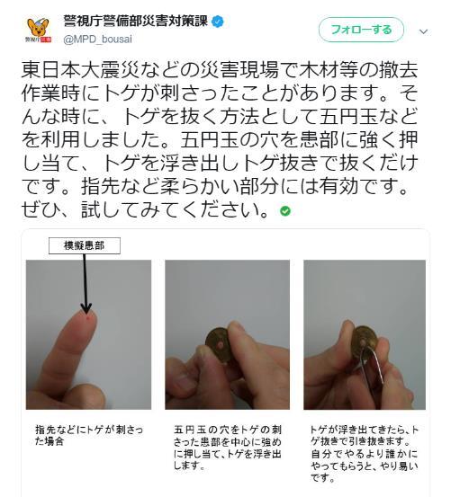 手にトゲが刺さったときは5円玉を使えば抜きやすくなる! 警視庁警備部災害対策課おススメの方法とは?