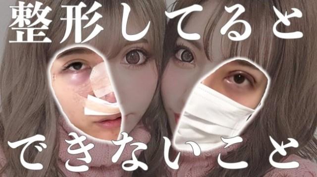 【赤裸々】双子モデルが美容整形のメリット・デメリットを暴露! 「鼻がカチコチ」「固いものが噛めない」などのリアルトークがエグくて痛快